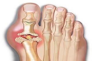 Obat Gout - Cara Mencegah Serangan Gout urat adalah